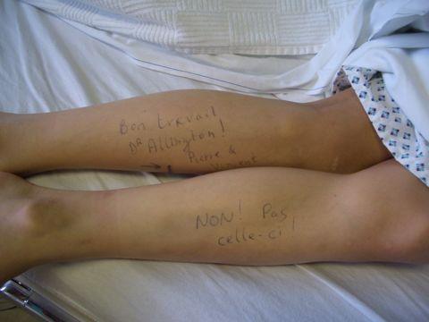 2-jambes.jpg